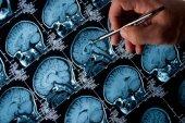 Caja Rural de Soria apoya la investigación de Alzheimer