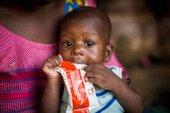 UNICEF: la Covid aumentará desnutrición en niños
