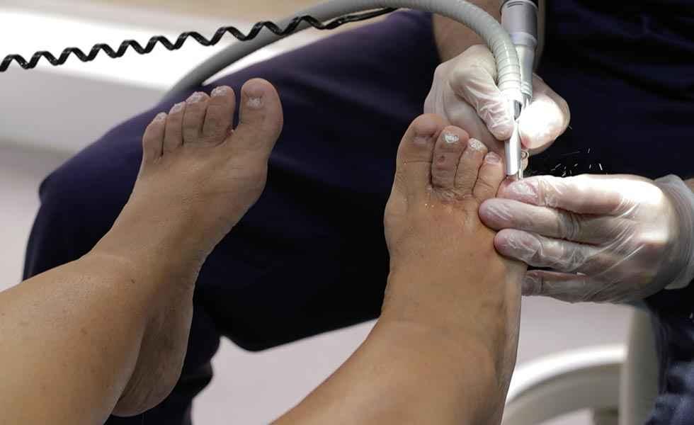 Los podólogos reclaman inclusión en campaña de vacunación