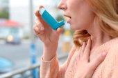 Los farmacéuticos refuerzan su formación en asma